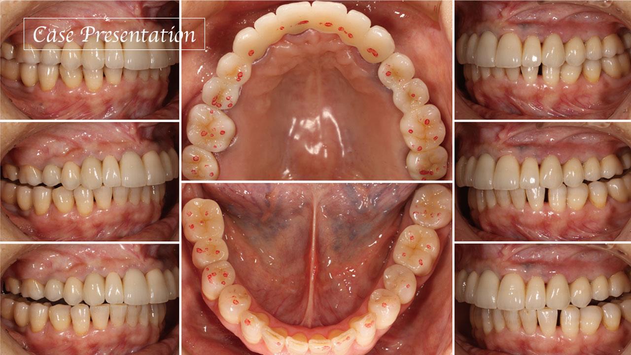 「咬合安定の条件」を踏まえた咬合再構成治療 〜何を『基準』とし、どう処置を進めていくかを考える〜の画像です