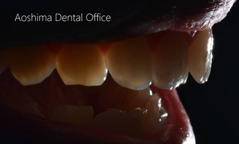 天然歯の奇跡的な美しさを感じる