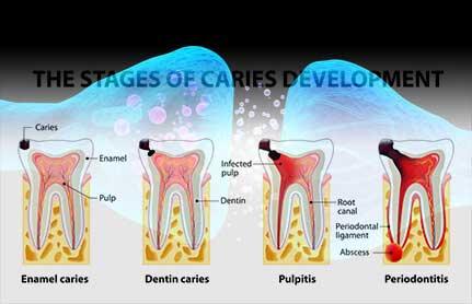 歯髄の創傷治癒を促す新たなメカニズムを解明  新潟大