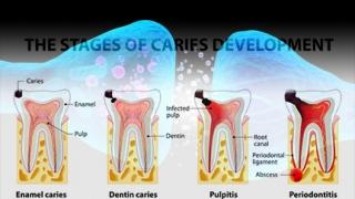 歯髄の創傷治癒を促す新たなメカニズムを解明ー新潟大