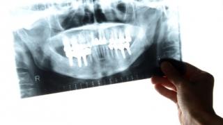 米国コロンビア大学歯周病科でのインプラント教育 第2回「米国でのインプラント教育事情」