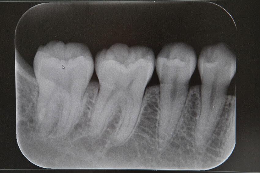 歯科レントゲン写真から分かるビタミンD不足とその活用 カナダの画像です