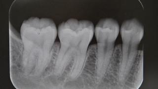 歯科レントゲン写真から分かるビタミンD不足とその活用 カナダ