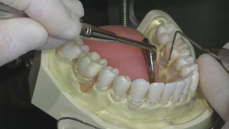 歯周治療ベーシックセミナー 第2章『プロービング』の画像です