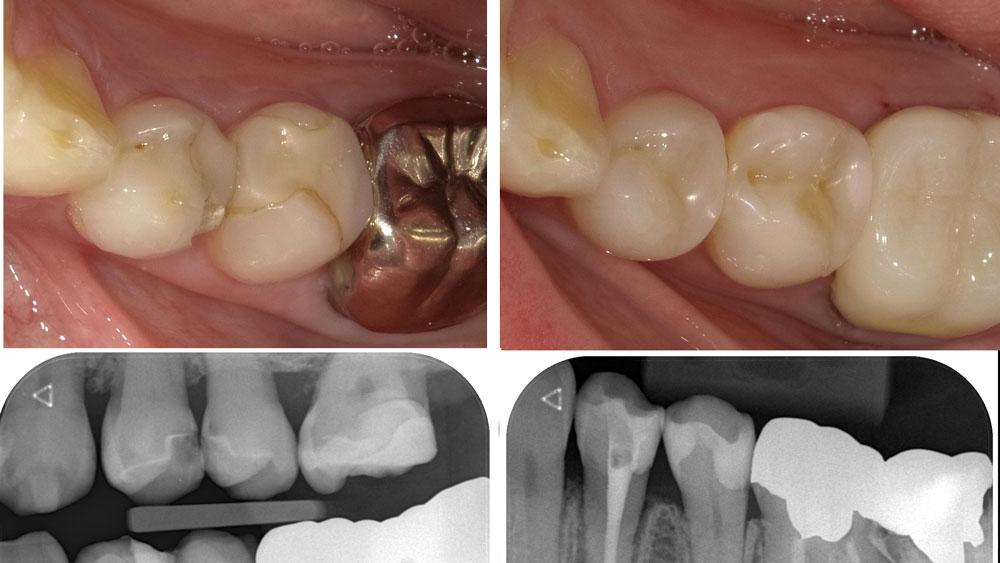 日本歯科保存学会「う蝕治療ガイドライン」とはの画像です