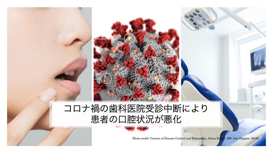 コロナ禍の受診中断で患者の口腔状況が悪化 7割の歯科医院で経験 大阪府歯科保険医協会の画像です