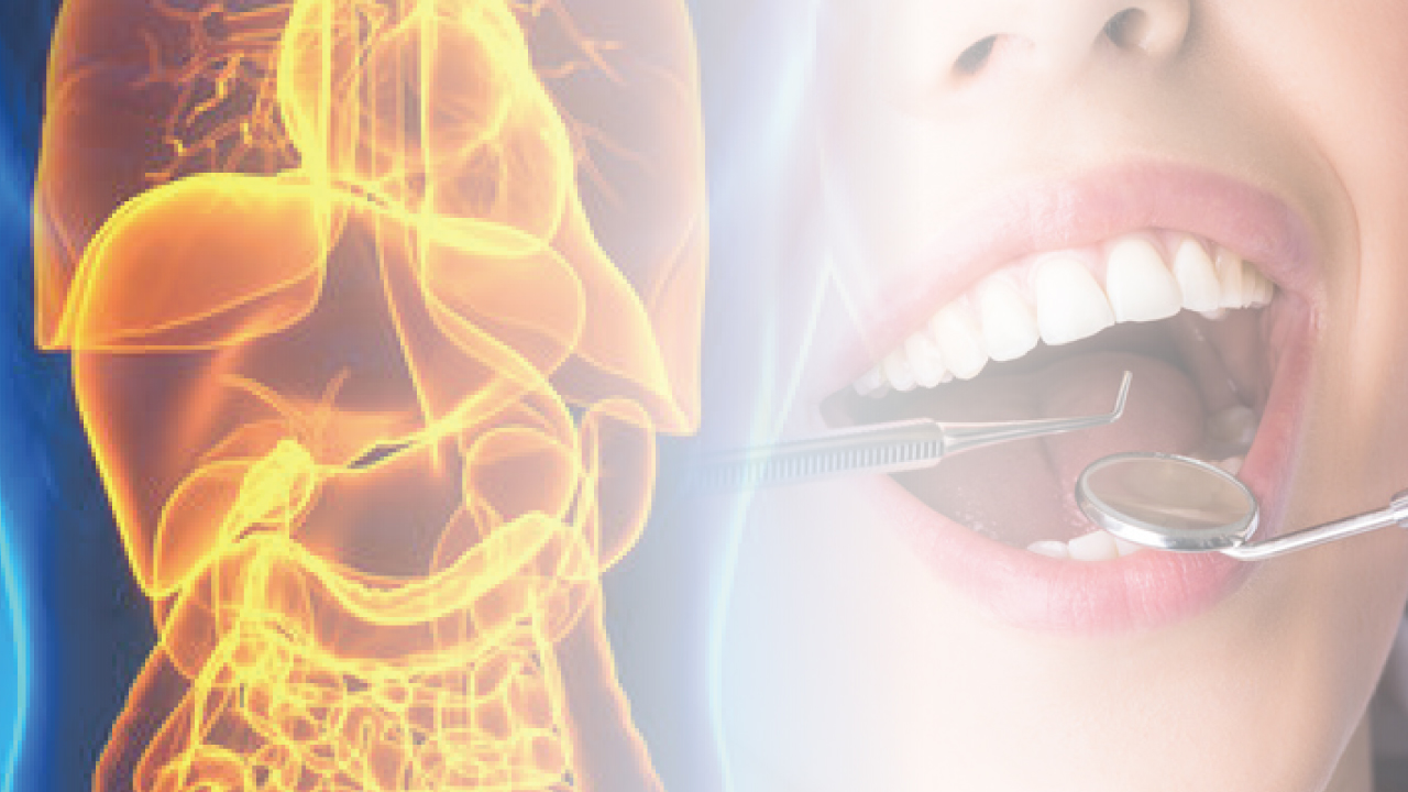 歯周病菌が肥満に伴う肝臓病を悪化させる 広島大の画像です