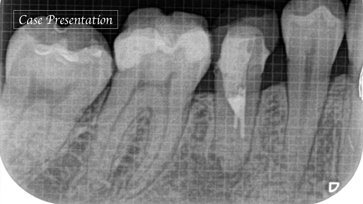 未処置根管を有する歯に対し歯内療法を行った一症例の画像です