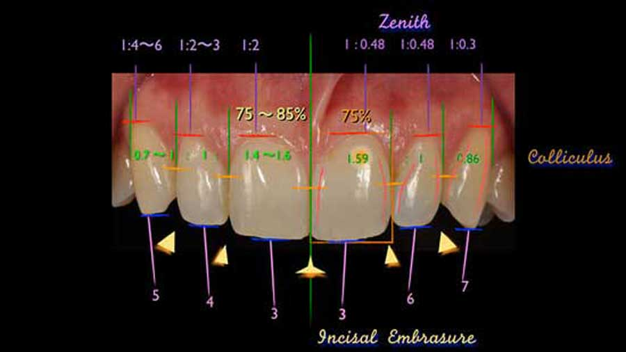 美しい歯の形態・位置とはの画像です