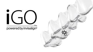 iGOシステム   〜GP向けに開発されたマウスピース型デジタル矯正システム〜の画像です
