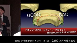 松丸 悠一先生『失敗しない総義歯臨床へのヒント』第4回 上顎 床外形線の設定
