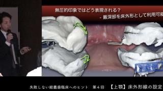 失敗しない総義歯臨床へのヒント 第4回『上顎床外形線の設定』