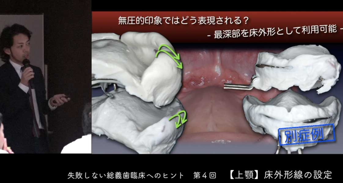 失敗しない総義歯臨床へのヒント 第4回『上顎床外形線の設定』の画像です