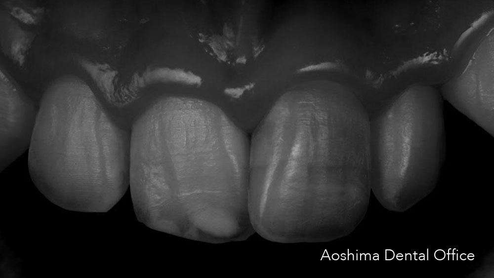 マメロンを意識して修復治療をするの画像です