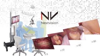 精密治療をより身近に Nextvision体験レポートの画像です