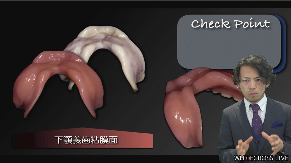 """総義歯の""""かたち""""から問題点を紐解く![年末年始にオススメ・松丸悠一先生LIVEレポ]の画像です"""