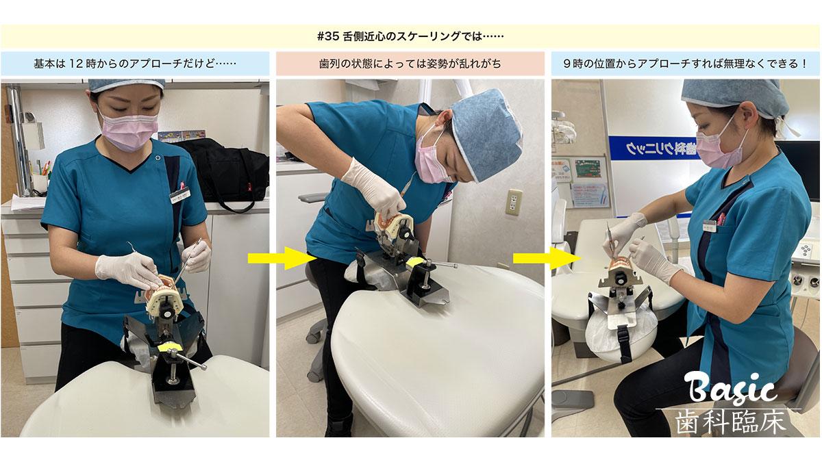 歯科医院の『歯周基本治療力』をアップしよう! 第2回「歯石除去」編の画像です