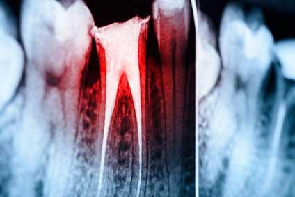 幹細胞を活用した歯髄再生治療 米国タフツ大学の画像です