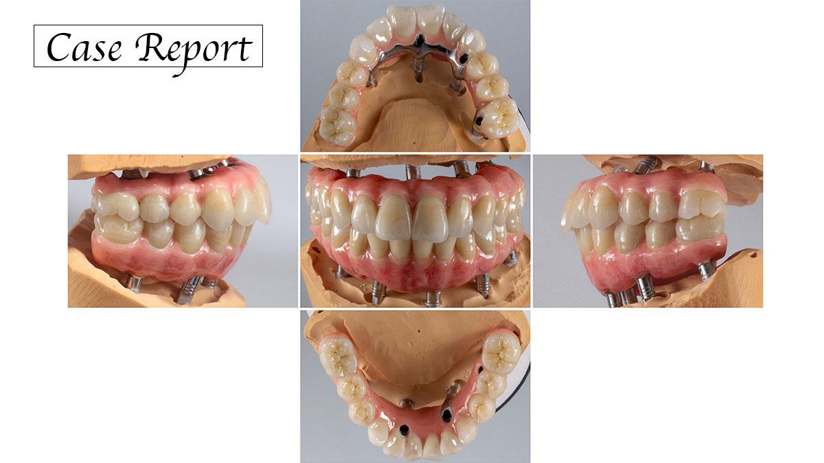 ショートアーチのImplant Fixed Bridgeを用いた咬合再構成の症例の画像です