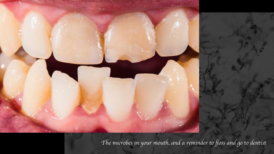 口腔内細菌叢に影響を与える要因について 米国コロラド州立大学の画像です