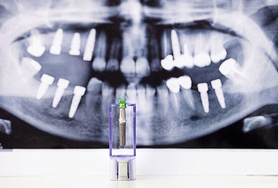 【歯科医師統計】どのインプラントシステムを使っていますか?の画像です