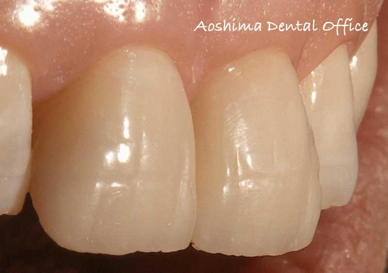 最難関・前歯 Ⅳ級症例、どうしていますか?