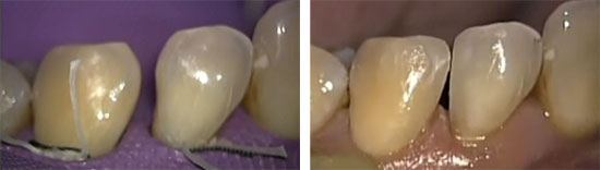 歯間離開に対するコンポジット充填の画像です