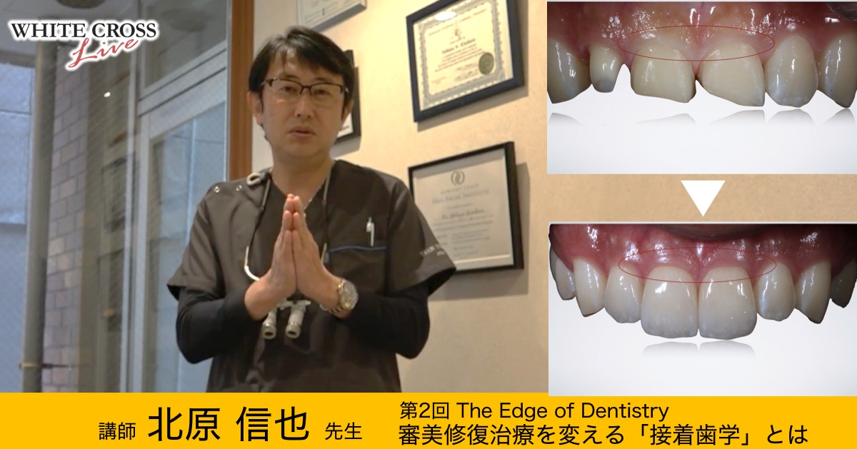 【3/27 Live開催】SJCD北原信也先生『審美修復治療を変える「接着歯学」とは』予告編