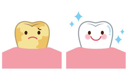 海外における歯科の啓蒙〜幼少期からどのようにして意識を高めているのか〜の画像です