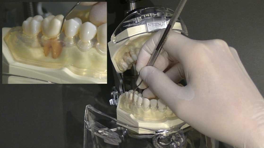 歯周治療ベーシックセミナー 第4章『ルートプレーニング_ハンドスケーラー編』の画像です