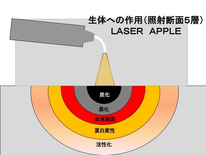 歯科用レーザー総論 〜レーザーとは〜