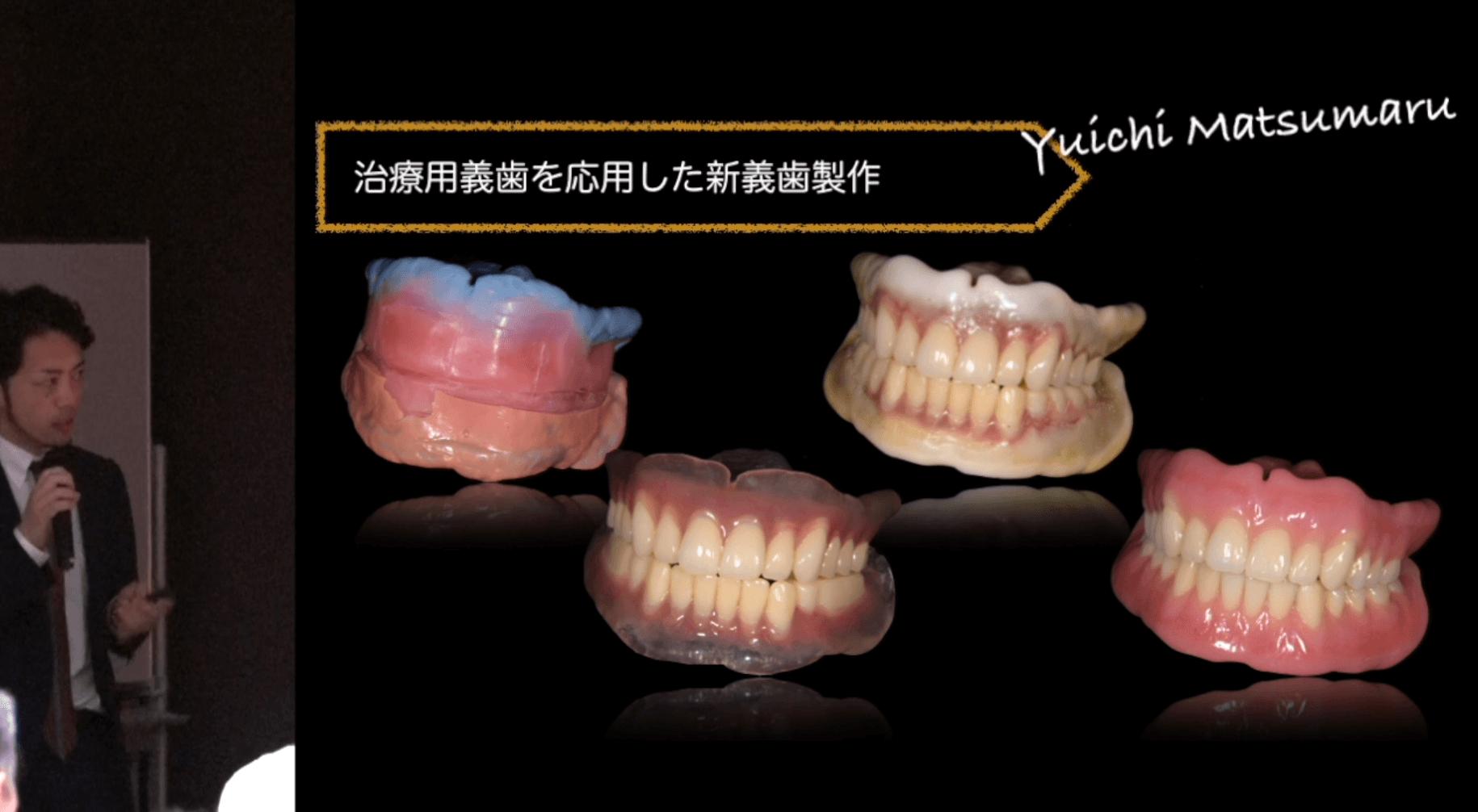 松丸 悠一先生『失敗しない総義歯臨床へのヒント』 第1回 〜総義歯治療専門歯科医師として〜
