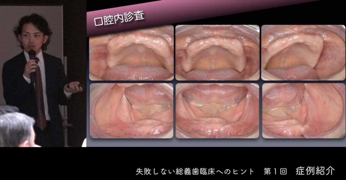 失敗しない総義歯臨床へのヒント 第1回『症例紹介』の画像です
