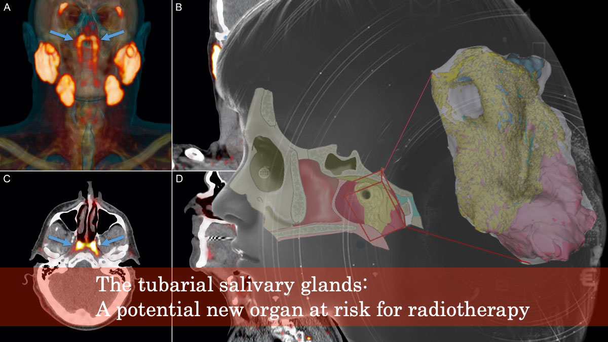 未知の唾液腺が鼻咽喉で発見される オランダがん研究所の画像です