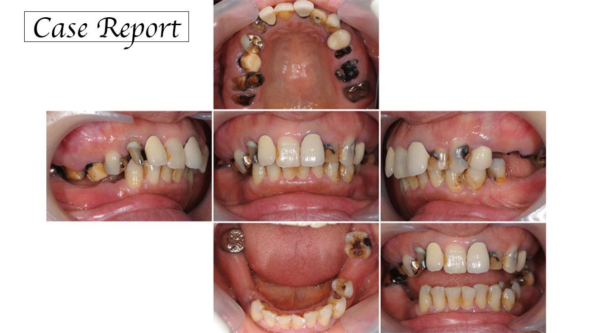 咬合崩壊を起こしたⅡ級咬合患者に対してインプラントを用いて咬合再構成を行った症例の画像です
