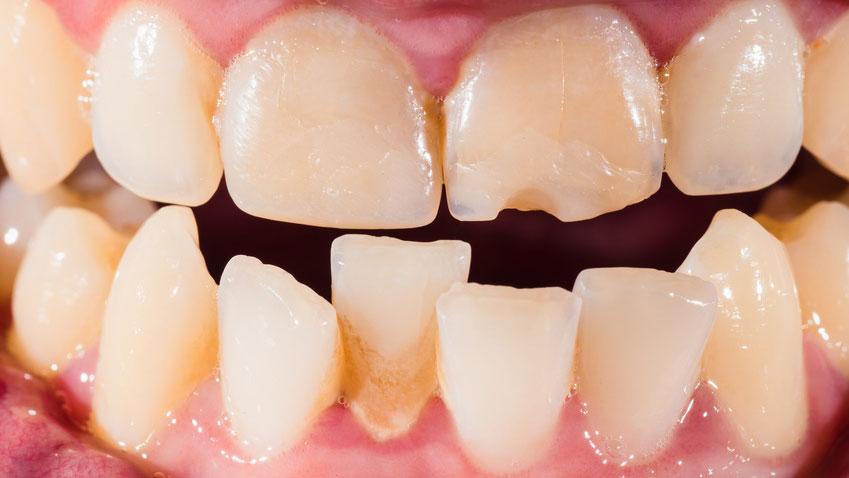 歯周病に罹患した女性における様々なガンの発症リスクの高まりについて 米国