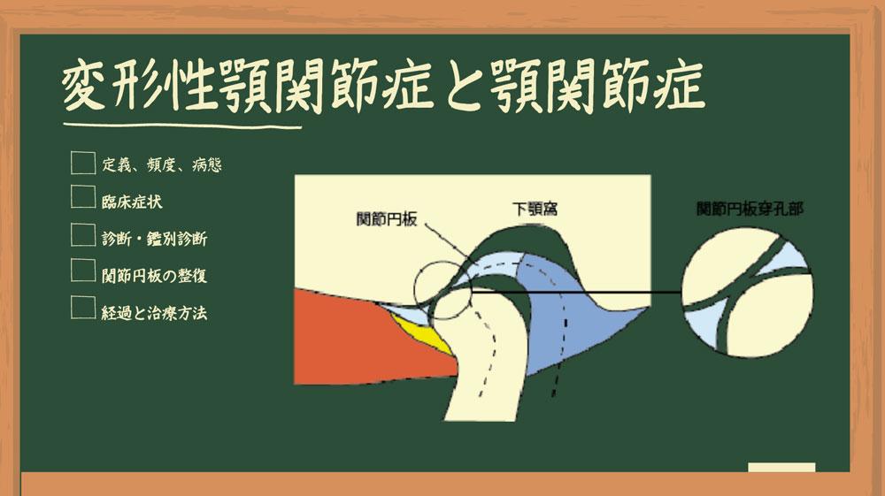 Dr.外川のやさしい補綴講義 #5「変形性顎関節症と顎関節症」の画像です
