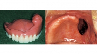 顎顔面補綴学という学問をご存知でしょうか?の画像です