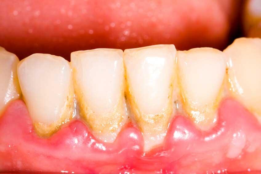 歯周病が様々ながんのリスク要因に 米国前向きコホートの画像です