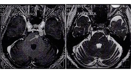 脳腫瘍の患者が最初に歯科を受診する!?-口腔顔面痛への理解の必要性-の画像です