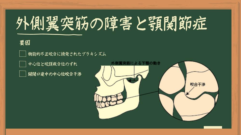Dr.外川のやさしい補綴講義#6「外側翼突筋の障害と顎関節症」の画像です