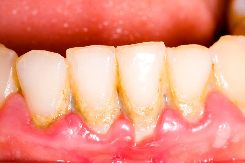 重度の歯周病により癌のリスクが24%高まる 米国タフツ大学