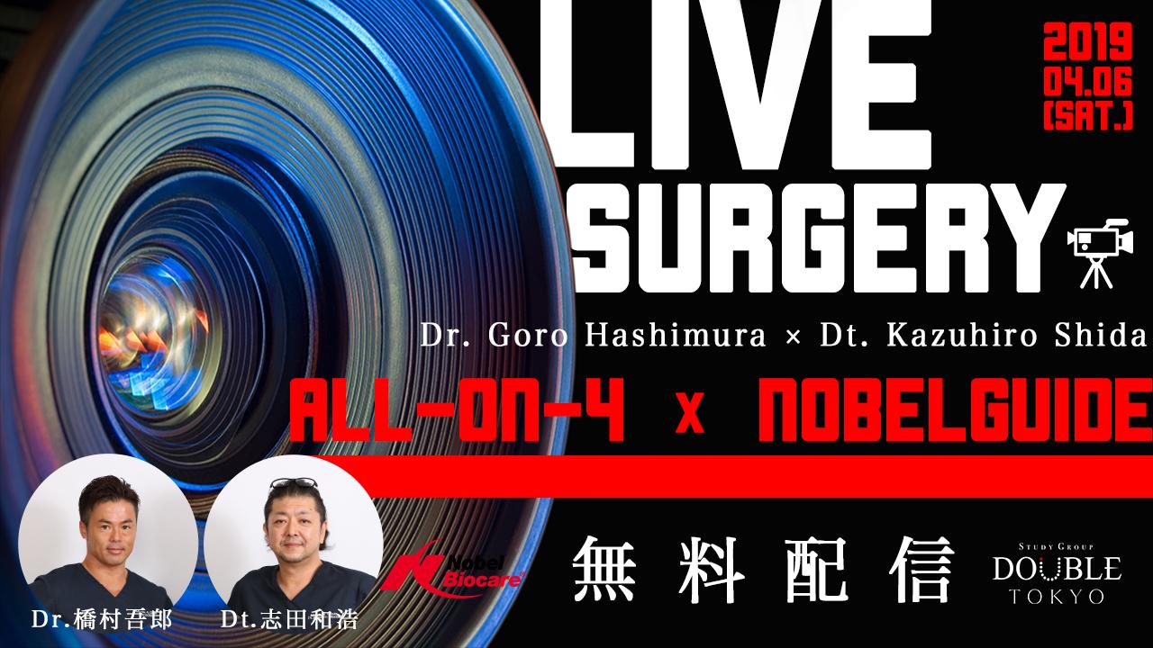 【無料ライブオペ開催】All-on-4コンセプトとガイデッドサージェリーを日本全国へ配信!の画像です