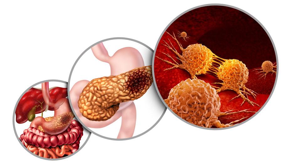 口腔内細菌と膵嚢胞性腫瘍の関連性 カロリンスカ研究所の画像です