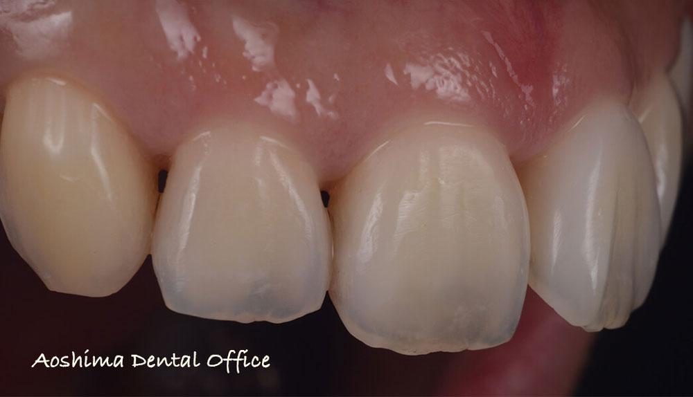 口腔内写真で記録を残すということの意味 ダイレクトボンディングの視点からの画像です