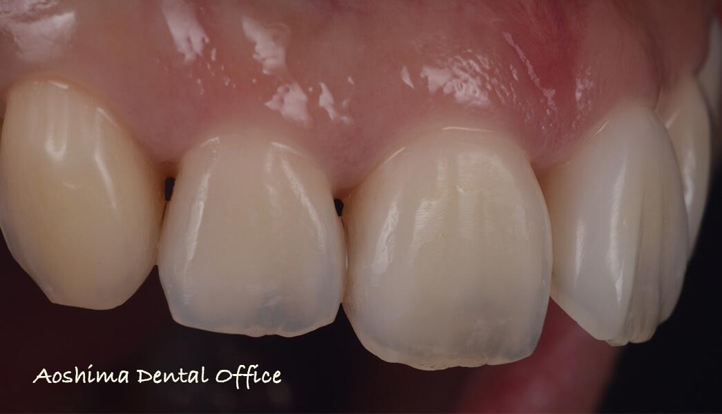 口腔内写真で記録を残すということの意味 ダイレクトボンディングの視点から