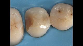 臼歯Ⅱ級をダイレクトボンディングで治療するときのポイント