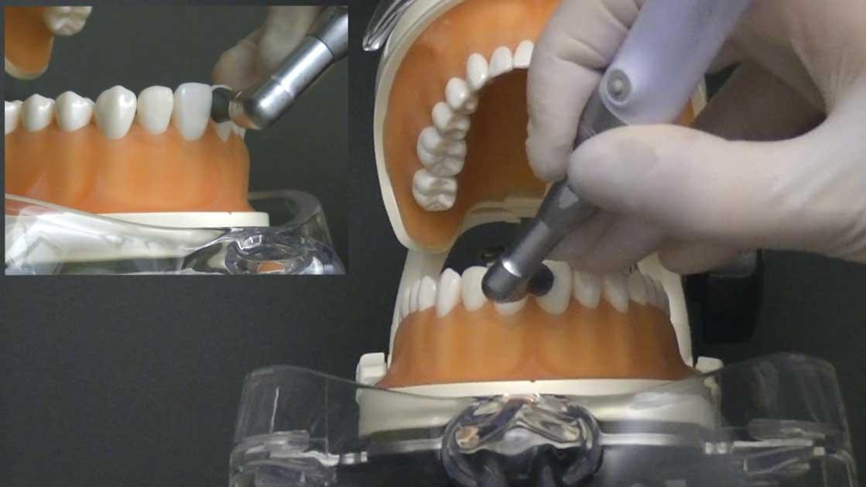 歯周治療ベーシックセミナー 第5章『PCR・PTC・ミラーの使い方』の画像です