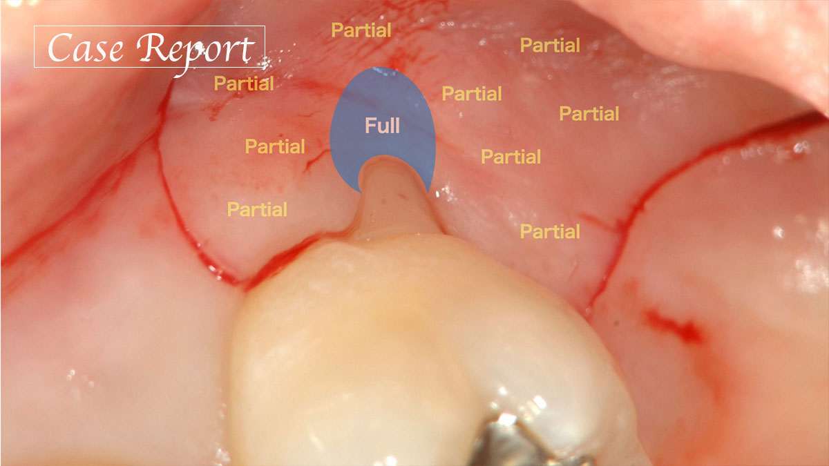 最後方臼歯の歯肉退縮に対するEmdogain®️と上皮下結合組織移植を併用した歯肉弁歯冠側移動術の画像です