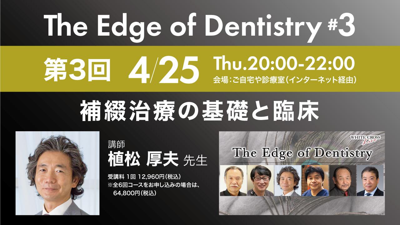【4/25 Live開催】SJCD植松厚夫先生『補綴治療の基礎と臨床』予告編の画像です